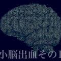 小脳出血その1